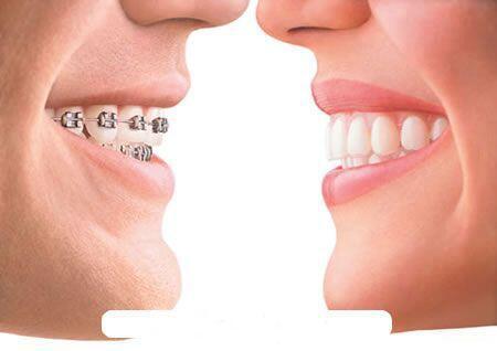 Giá niềng răng rẻ nhất ở đâu ?