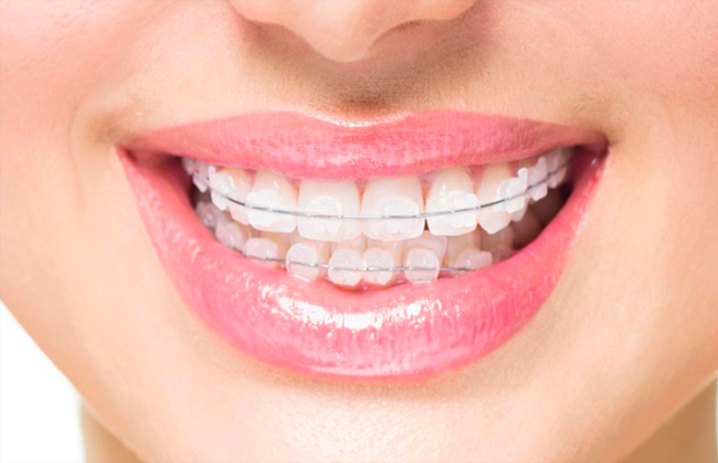 niềng răng hô hàm dưới