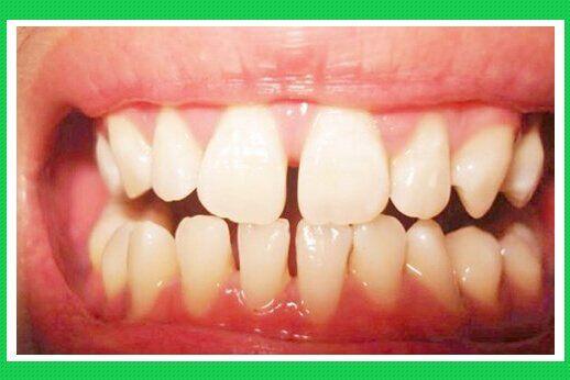 Răng thưa có cần chỉnh sửa không?
