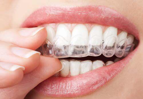 Niềng răng thưa mất bao lâu? 2