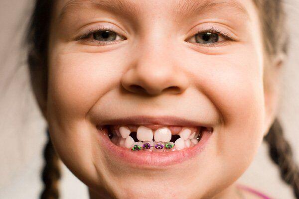 Niềng răng trẻ em: những điều đúng sai ?