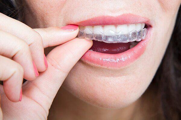 niềng răng khay nhựa