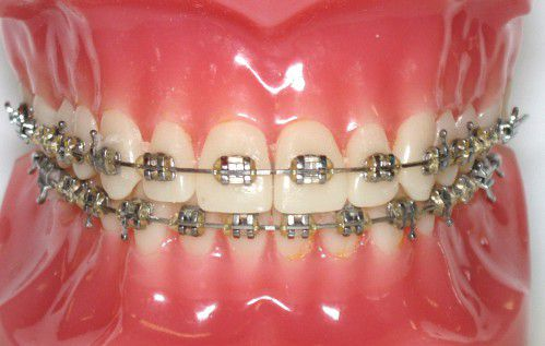 Niềng răng và những vấn đề không thể tránh