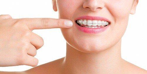 Phương pháp niềng răng với minivis như thế nào ?