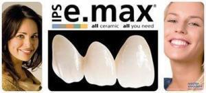 Nụ Cười Rạng Rỡ Với Răng Toàn Sứ E.max