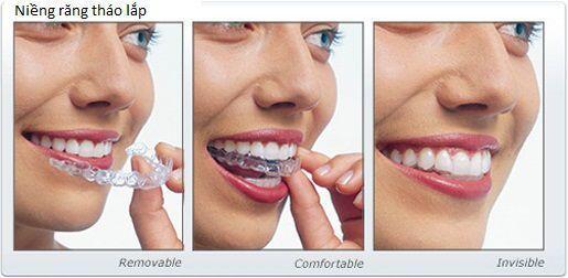 Phải đeo khí cụ duy trì sau niềng răng trong bao lâu?