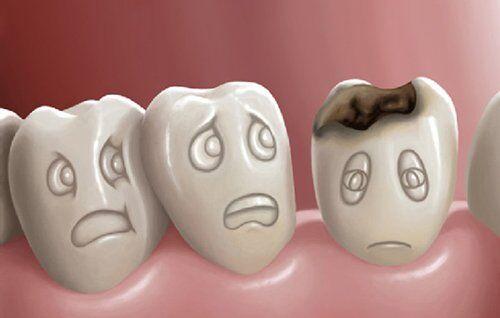 Phải làm gì khi răng chết tủy