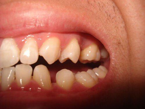 Phân loại các dạng thưa răng thường gặp