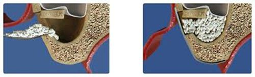 Phân loại phương pháp ghép xương trong cấy ghép implant