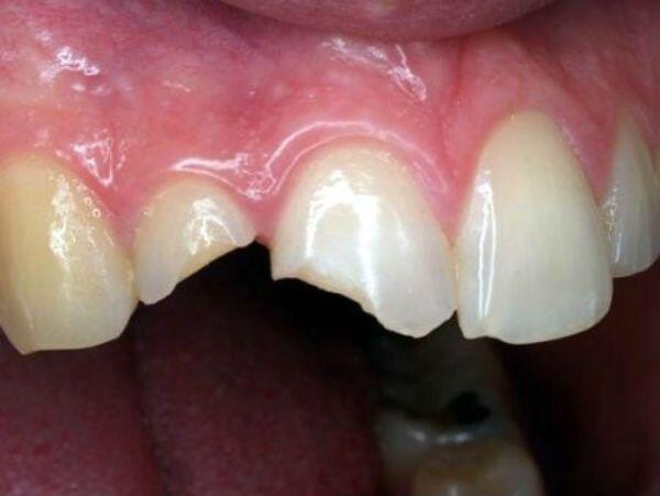 phục hình răng gãy vỡ