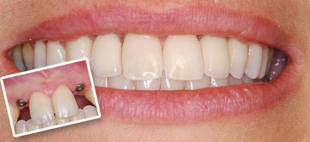 Trồng răng giả mất thời gian bao lâu phụ thuộc vào đâu