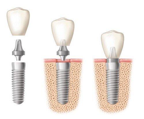 Phục hình tức thì sau khi cấy ghép implant