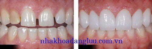Phương pháp bọc răng sứ cho răng thưa