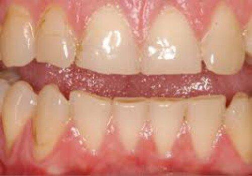 Phương pháp để mặt răng không bị mòn