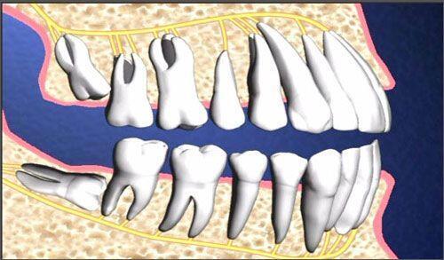Phương pháp nhổ răng an toàn