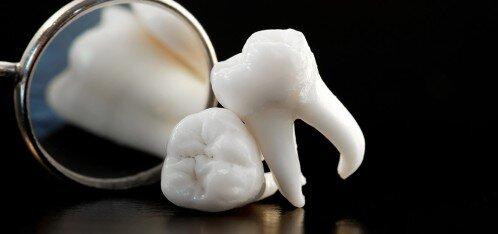 Phương pháp nhổ răng khôn không đau