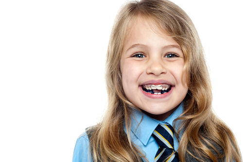 phương pháp niềng răng cho trẻ độ tuổi tăng trưởng