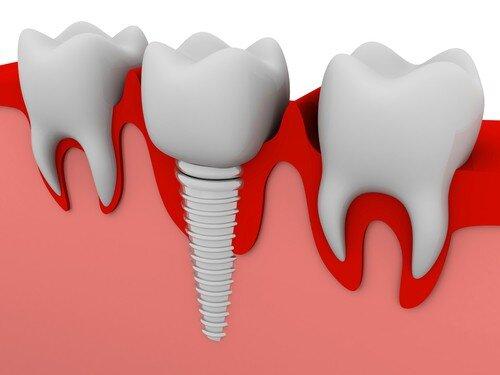 Phương pháp thay thế răng mất mà không làm cầu răng