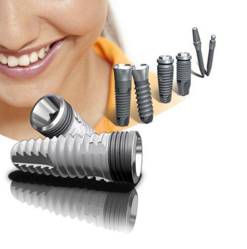 Phương pháp trồng răng giả hiện đại nhất hiện nay