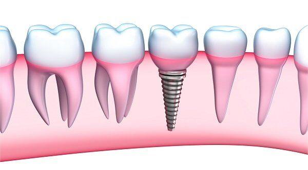 qua-trinh-cay-ghep-implant-cho-rang-cua