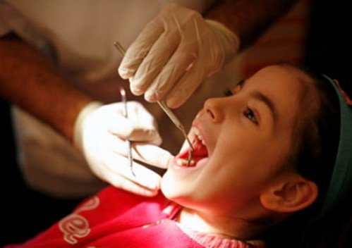 Qúa trình hình thành sâu răng