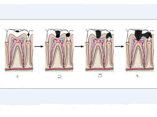 Qúa trình vi khuẩn tàn phá răng