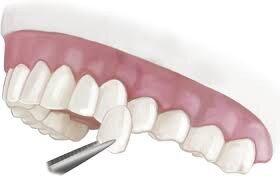 quy trình bọc răng sứ veneer
