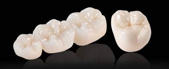 Bọc răng sứ Zirconia được thực hiện ra sao?