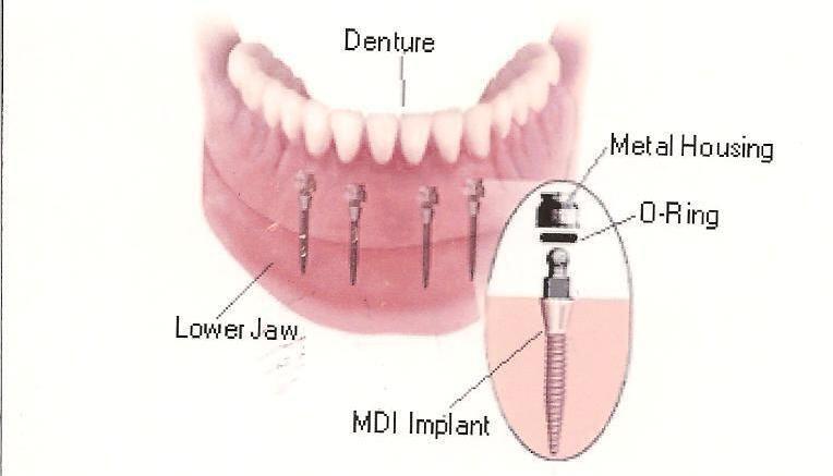 Ưu điểm của Mini - Implant