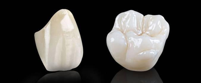 Quy trình làm răng sứ Cercon HT