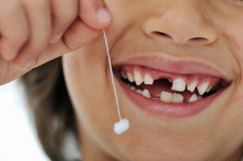 Quy trình nhổ răng trẻ em