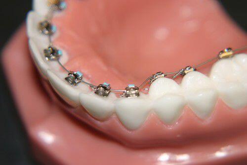 Quy trình niềng răng mặt trong