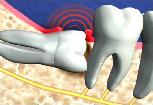 Quy trình phẫu thuật răng khôn