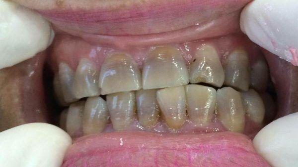 răng bị sỉn màu nặng