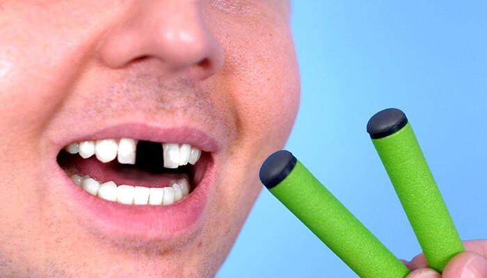 làm gì khi răng bị gãy