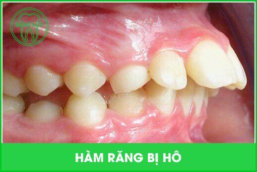 các dạng răng hô thường gặp