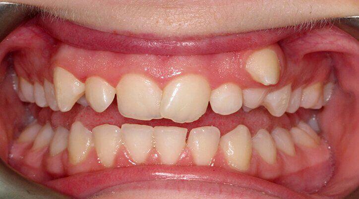 răng khểnh có cần niềng không