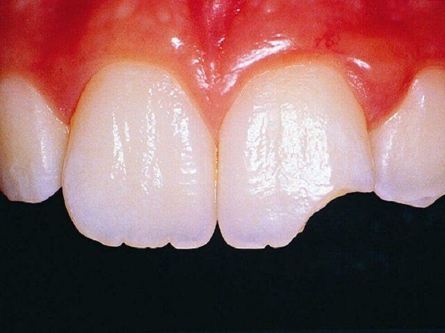răng bị gãy mẻ