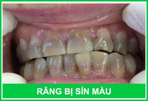 Nguyên nhân khiến răng bị nhiễm màu từ bên trong