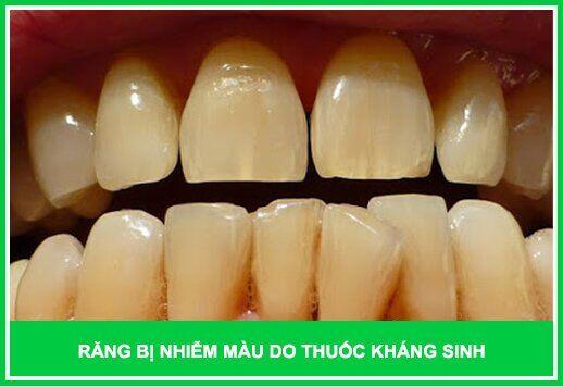 răng bị nhiễm màu nặng