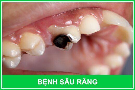 răng bị sâu phải làm sao