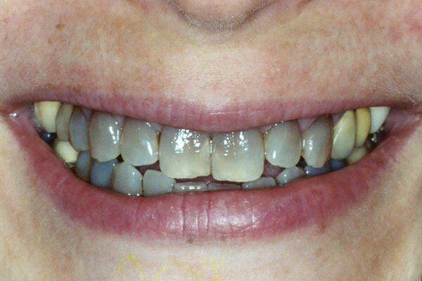 răng bị sỉn màu