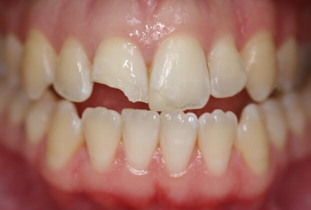 răng bị sứt mẻ