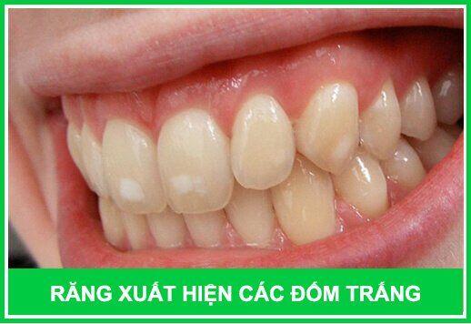 răng bị tổn thương