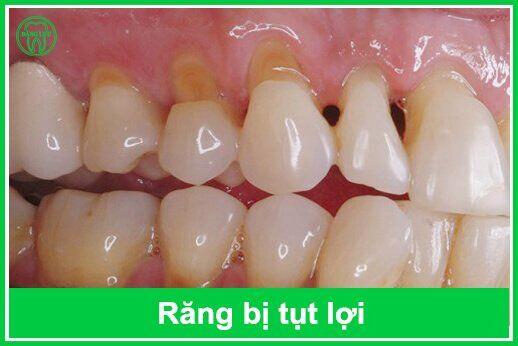 răng bị tụt lợi