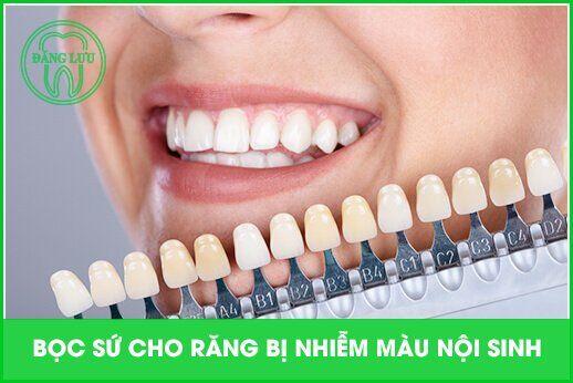bọc sứ cho răng nội sinh