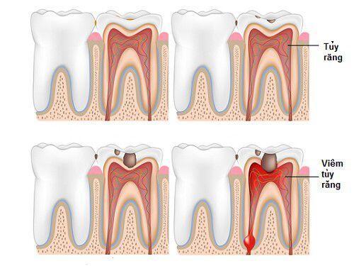 Cách điều trị viêm tủy răng hiệu quả