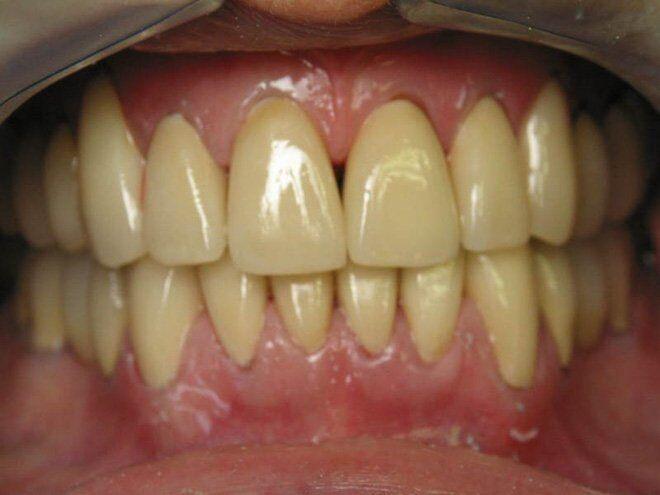màu răng ngả vàng