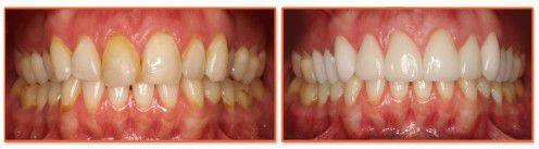 Bọc răng sứ cho trường hợp răng nhiễm màu nặng
