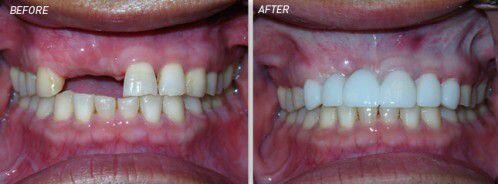 Có nên bọc sứ cho răng đã chữa tủy ?